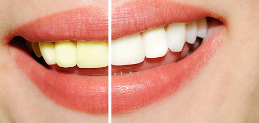 PROFESSIONAL TEETH WHITENING HOLMES BEACH FL DENTIST