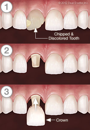 Dental Crown Procedures