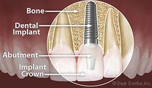 Dental Implants Holmes Beach FL
