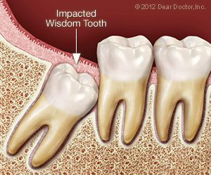 impacted-wisdom-tooth