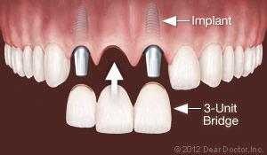 Dental Implants for Replacing Multiple Teeth Holmes Beach Dentist