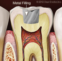 Metal Fillings