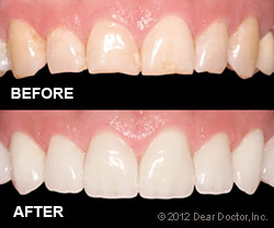Porcelain Veneers Before and After holmes beach Dentist
