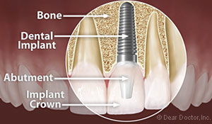 Dental Implants Holmes Beach FL