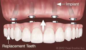 Permanent Dental Implants - Replacing all Teeth - Holmes Beach, FL