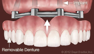Dental Implants - Removable Dentures holmes Beach FL Dentist