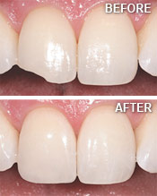Cosmetic Tooth Bonding Before and After - Island Dental Holmes Beach FL