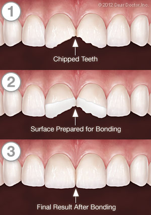 Tooth Bonding Steps and Procedures